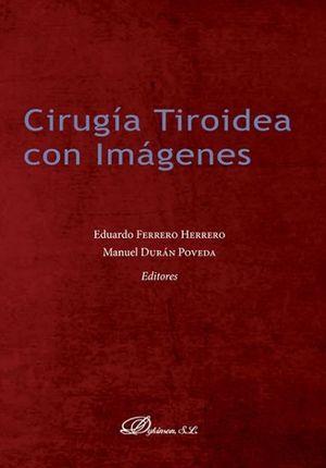 CIRUGÍA TIROIDEA CON IMÁGENES *